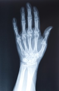 Hand Bones and Arthritis