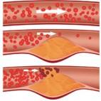 cholesterolsquare