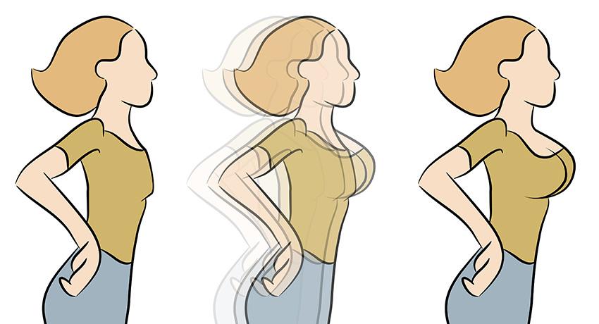 Implants illustration via Shutterstock