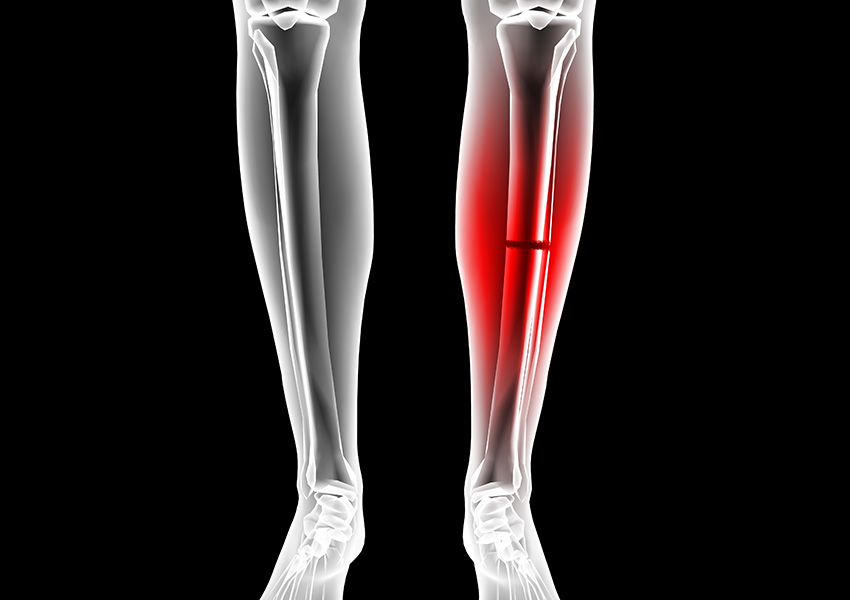 Broken leg image via Shutterstock