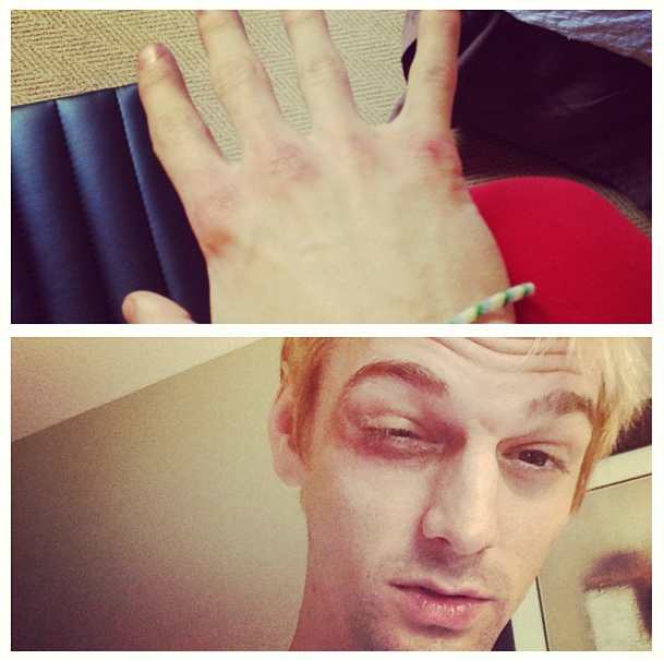 Aaron Carter Got Beat Up in Boston for Invading 'New Kids on the