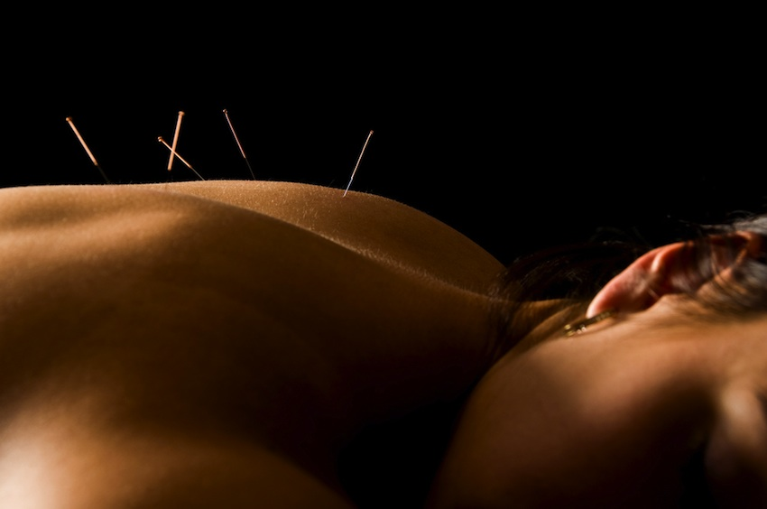 Acupuncture photo via Shutterstock