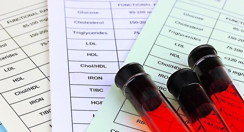 HIVtestlarge