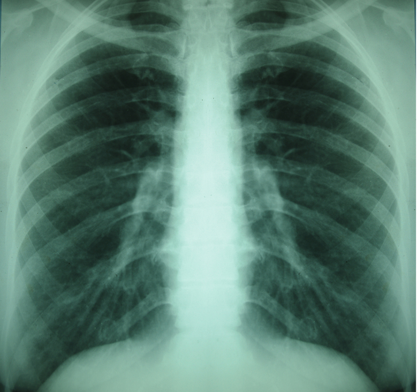Lung X-ray image via shutterstock