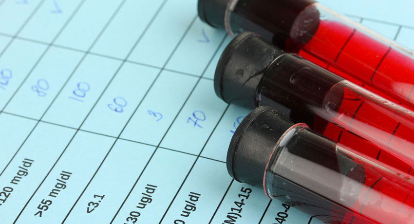 Blood test results image via shutterstock