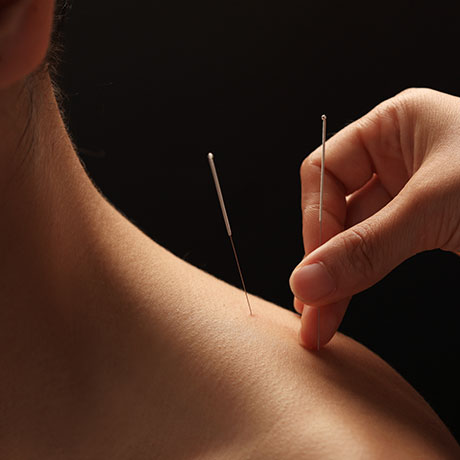 acupuncture-square