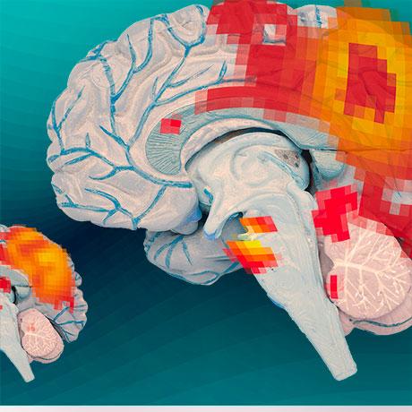 mit-brains-tudy-square