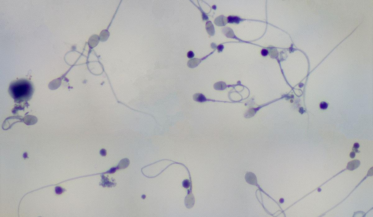 Сперма фото под микроскопом 14 фотография