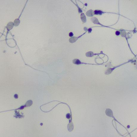 sperm-square