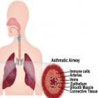 asthma1