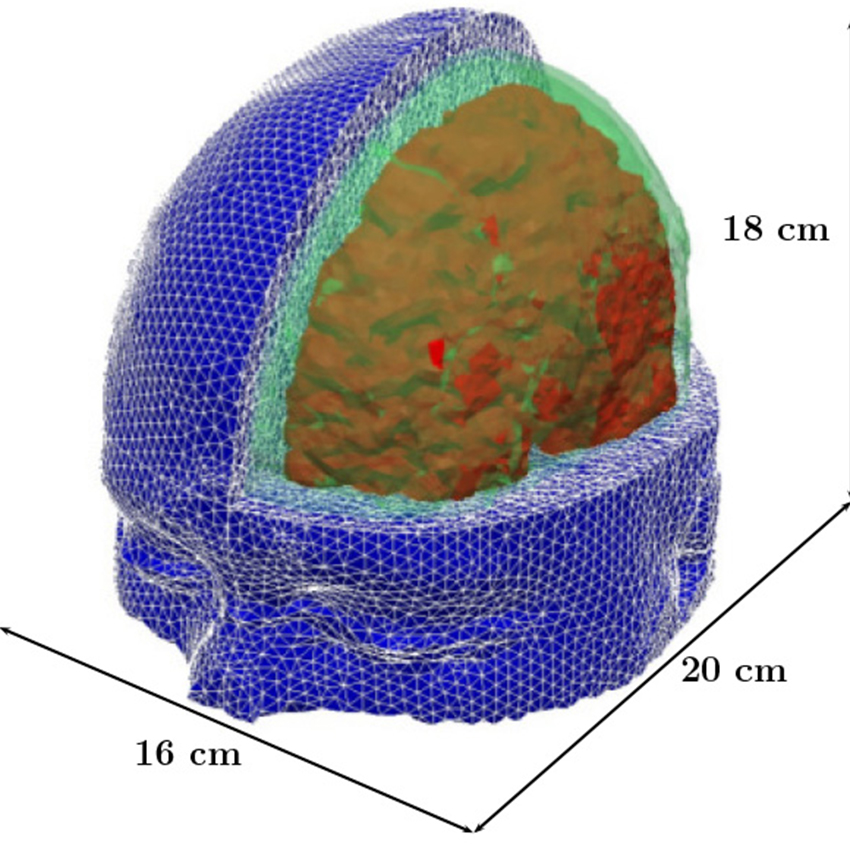 MIT researchers have developed a model of the human head for use in simulations to predict the risk for blast-induced traumatic brain injury. Relevant tissue structures include the skull (green), brain (red), and flesh (blue). Image provided by MIT