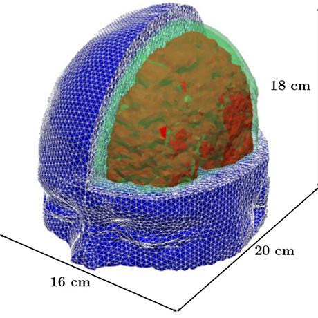 mit-brain-square
