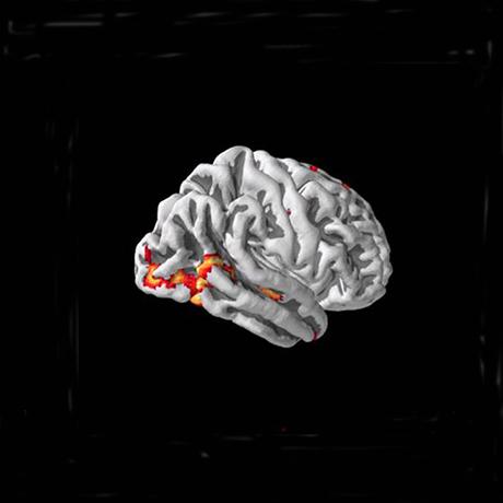 mit-brain-main-sqaure