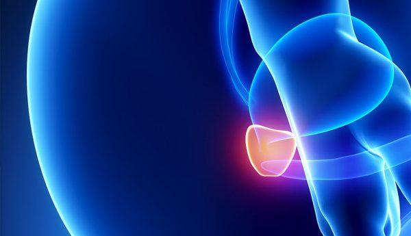 Bicalutamide And Dutasteride Prostate Cancer